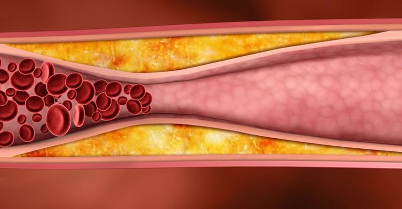 Холестерин и сосуды