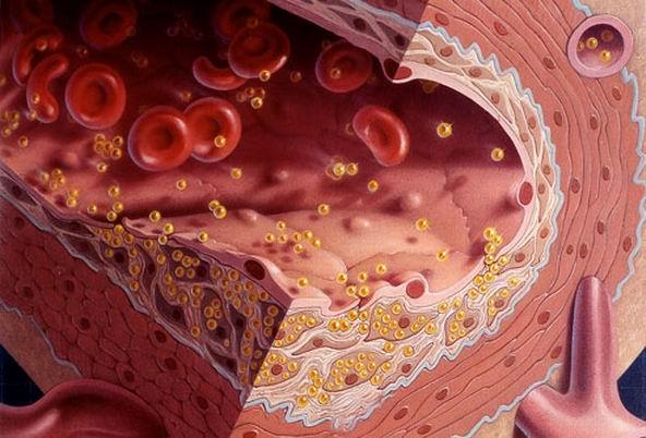 Жир, холестерин и липиды